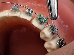 orthodontistbraces